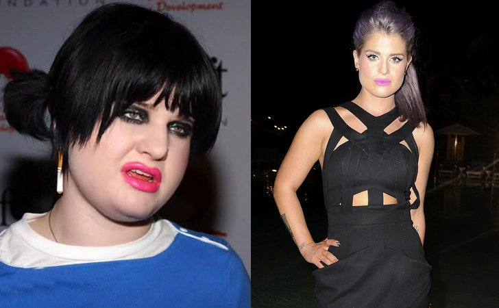 Celebrity Weight Loss Transformations - Page 48 of 49 ...Kelly Osbourne Weight Loss 2016