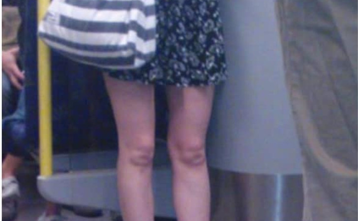 who are the twins in her knees