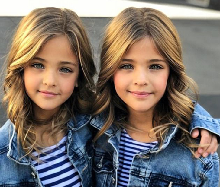 The Most Beautiful Twins In The World Are Now Famous